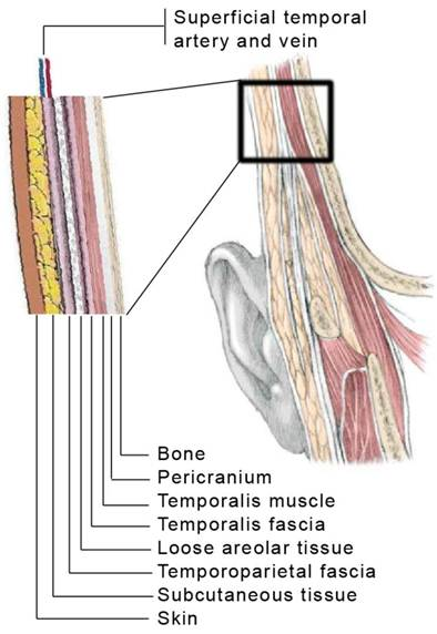 Muscle temporalis size