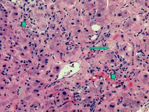 hepatitis C Ijmsv03p0079g01