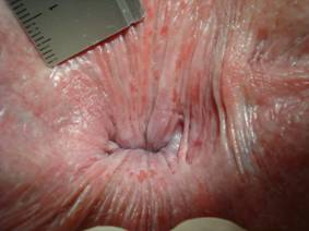 Weeping anal skin with superficial round splits and longitudinal superficial ...