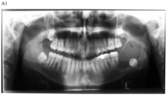 nasopalatine duct cyst npdcs case study Abstract the nasopalatine duct cyst (incisive canal cyst) (npdc) is the most common non-odontogenic cyst in the oral cacity, occuring approximately 1% of the population it is an uncommon condition that generally occurs in the maxillofacial bones this lesion may be clinically silent for years without.