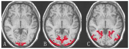 Relationship Of Visual Cortex Function And Visual Acuity