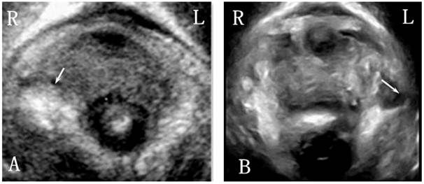 Three Dimensional Ultrasound Appearance Of Pelvic Floor In