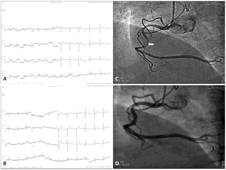 coronary artery spasm  review and update