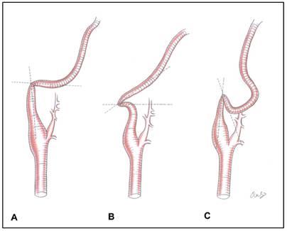Current Understanding of Dolichoarteriopathies of the
