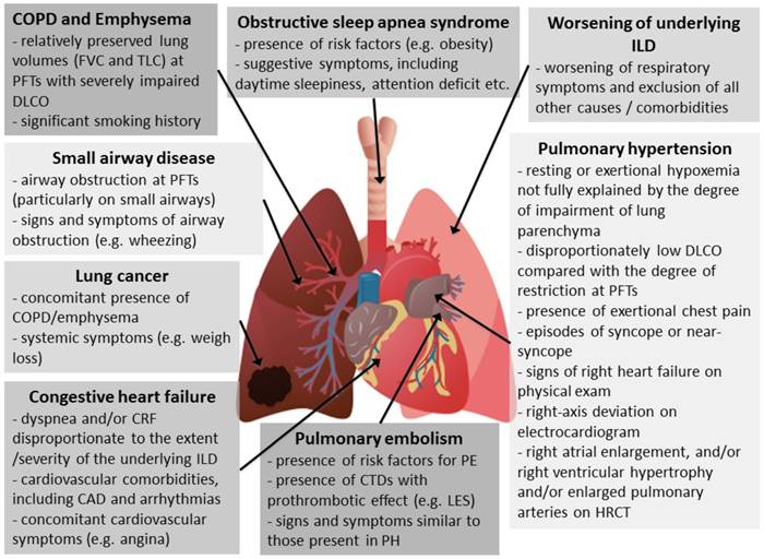 Management of Chronic Respiratory Failure in Interstitial